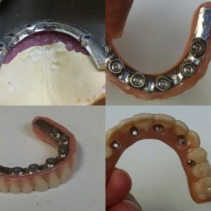 Fixed Denture and Bar Before Setup