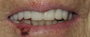 After Extractions And Denture Placement