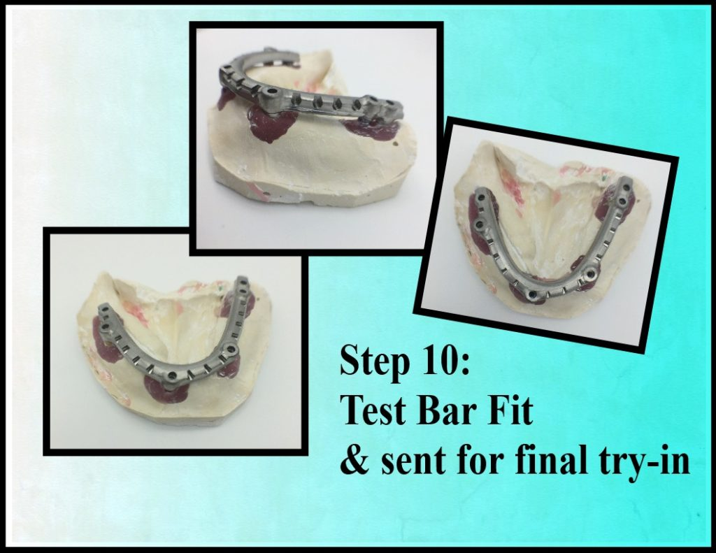 Step 10 Fixed Denture