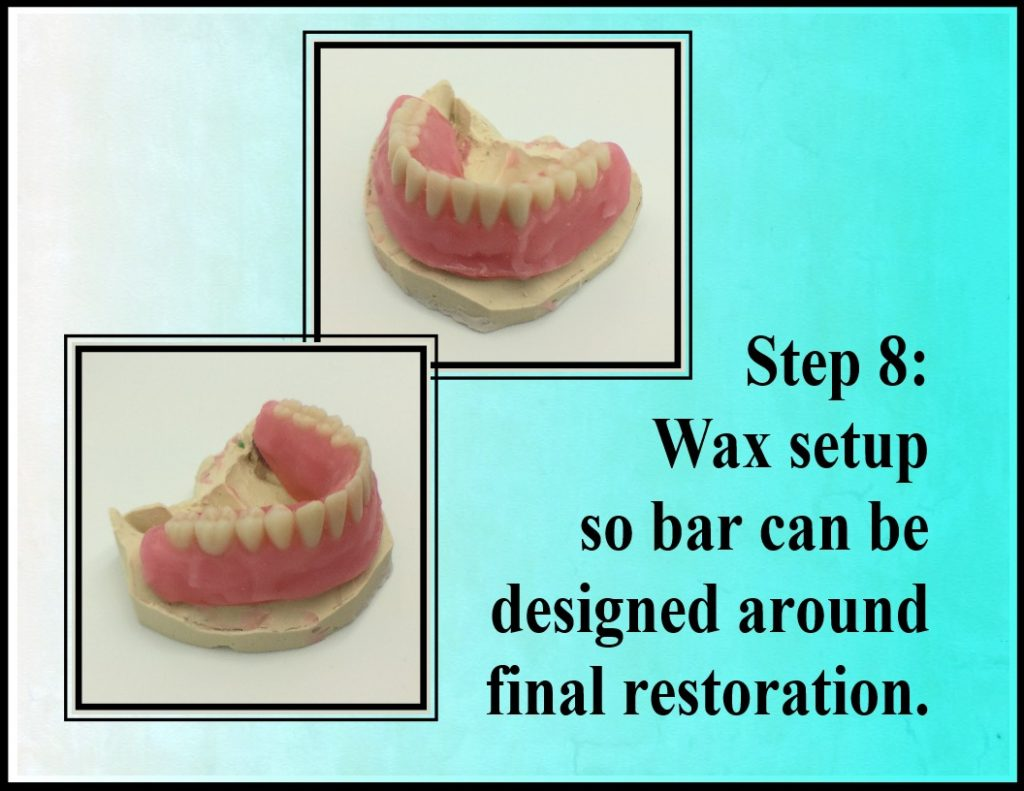 Step 8 Fixed Denture